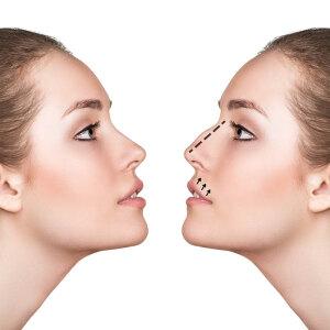 Operacja nosa: jak wygląda i ile kosztuje?