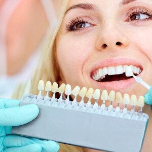 Pożyczka online na implant zębowy
